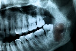 tumor caused by wisdom teeth