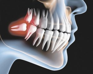 wisdom teeth removal Montreal case