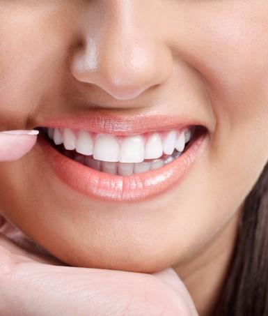 Blanchiment des dents Montreal